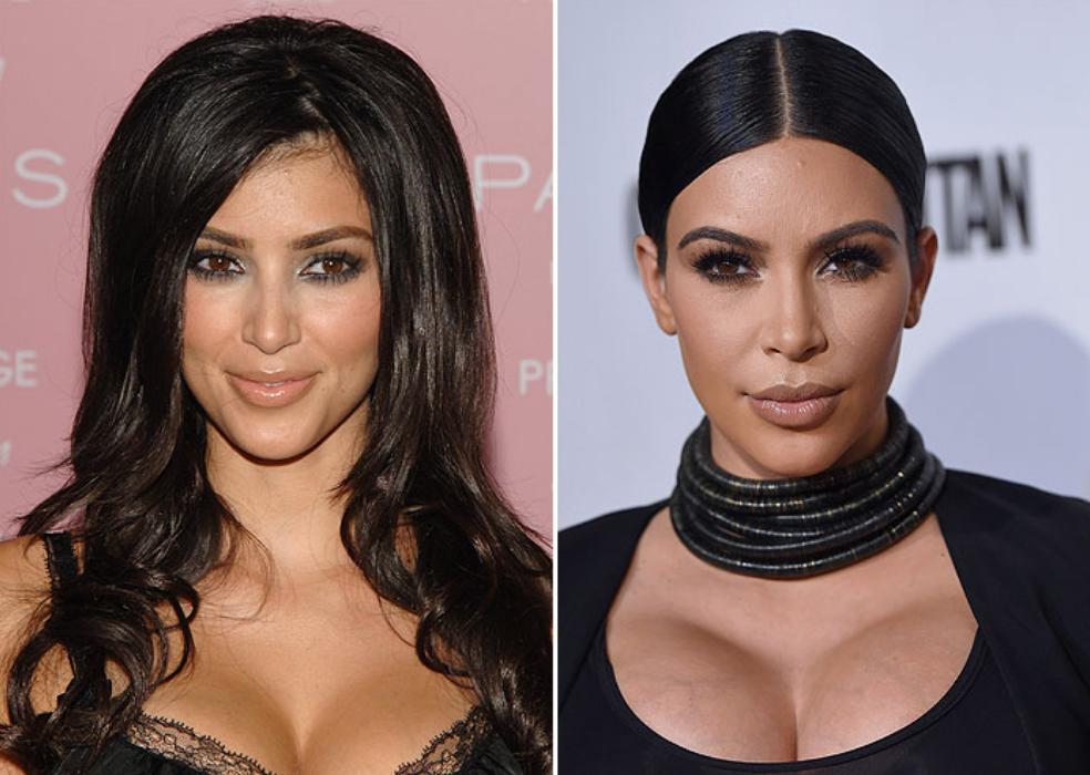 Aumento-de-mamas-Kim-Kardashian-fashionista-blogdemoda-cirugias-esteticas-ChicAdicta