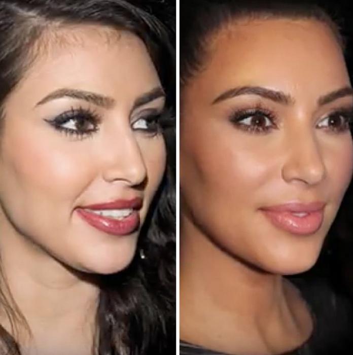Kim-Kardashian-Rinoplastia-piensaenchic-blog-de-moda-ChicAdicta-cirugiaesteticabarcelona