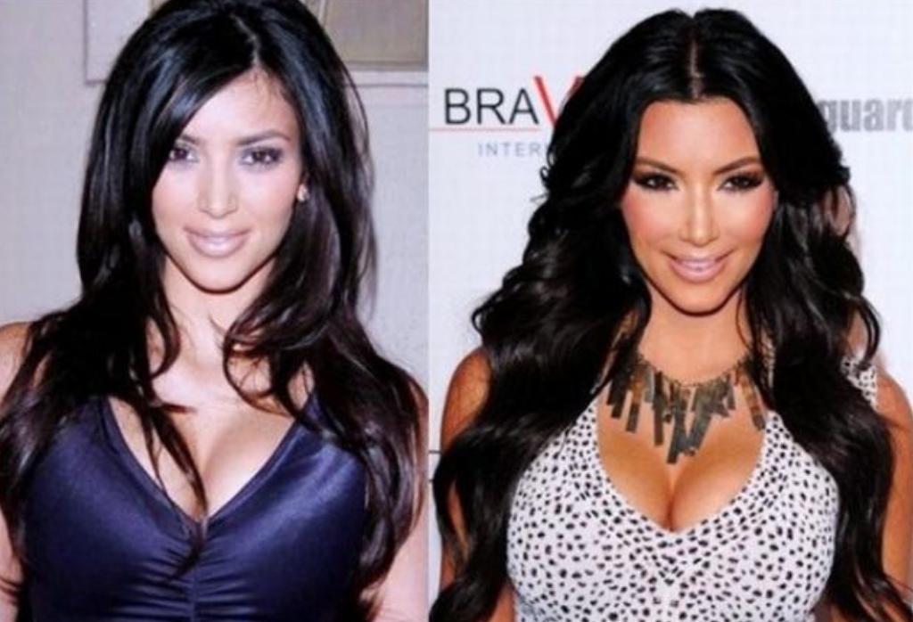 Kim-Kardashian-antes-y-despues-blog-de-moda-ChicAdicta-influencer-PiensaenChic
