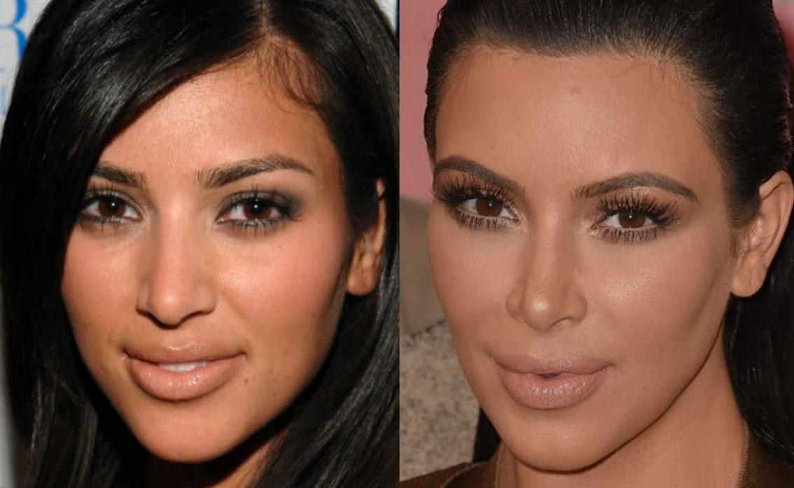 cirugia-estetica-barcelona-PiensaenChic-influencer-ChicAdicta-rinoplastia-Kim-Kardashian2